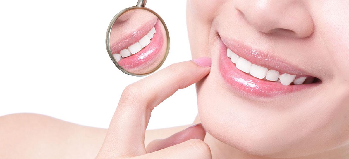pulizia denti acilia roma