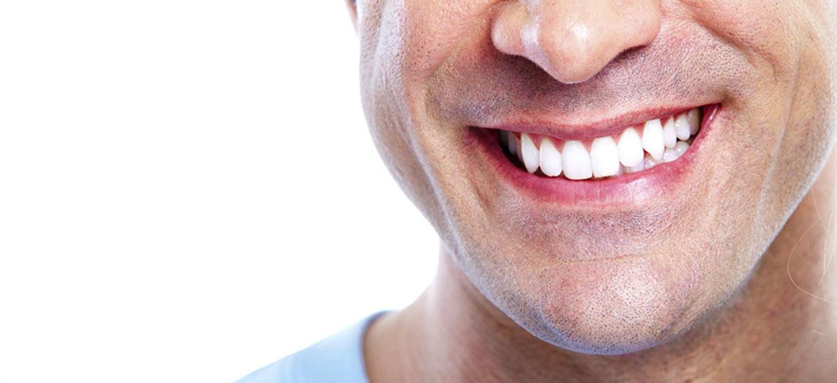 sbiancamento denti roma presso lo studio dentistico Acilia della Dott.ssa Greco
