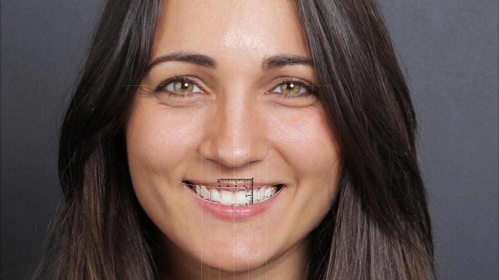 digital-smile-design