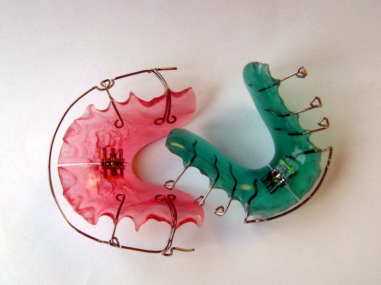 ortodonzia-funzionale