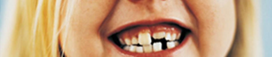 bambina con denti storti