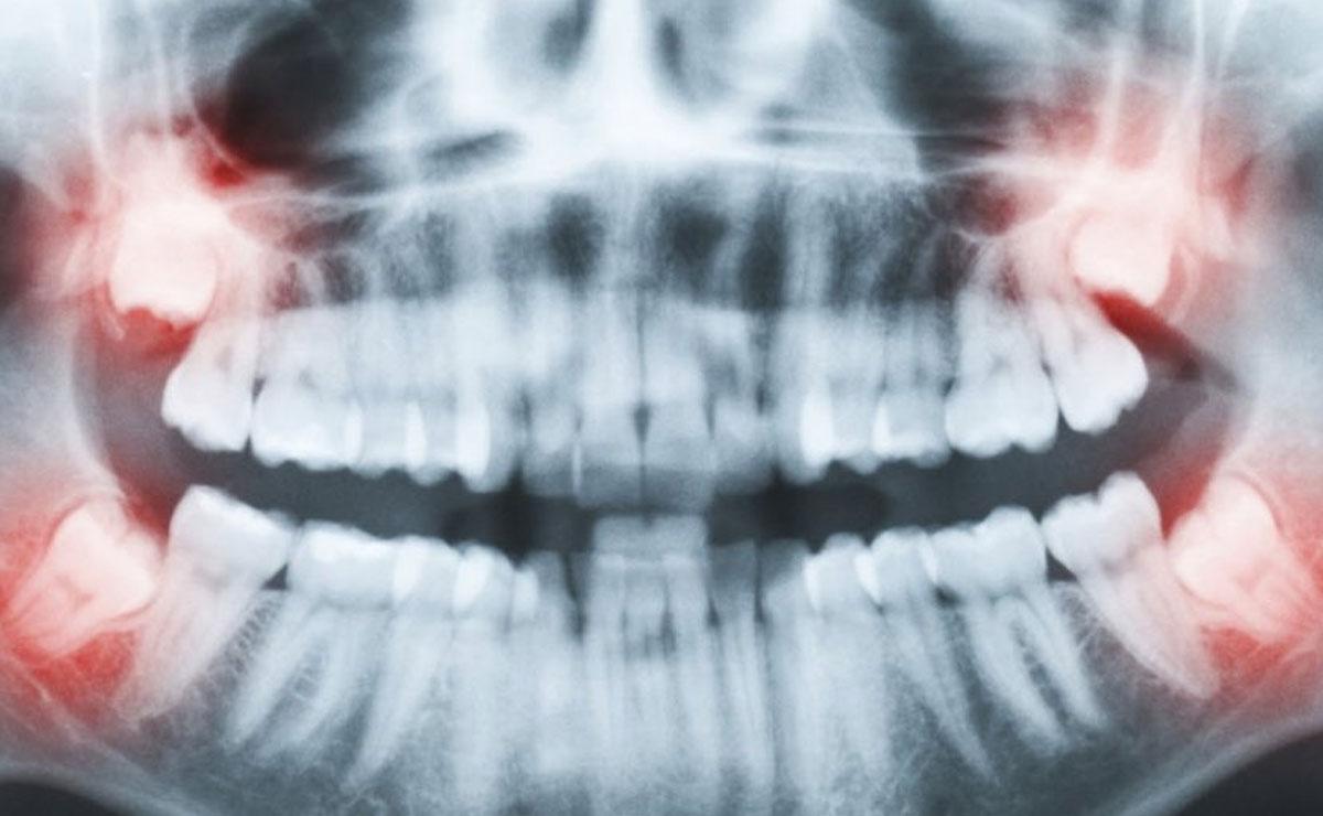 Estrazione dente del giudizio