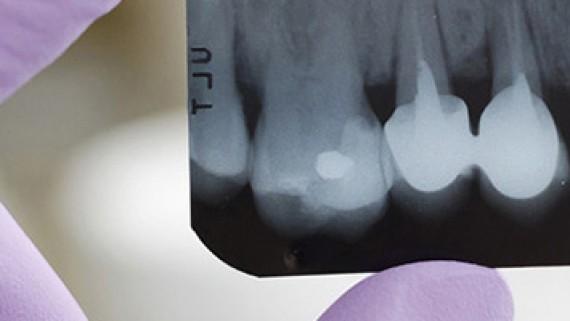 devitalizzazione dente molare presso lo studio dentistico acilia roma