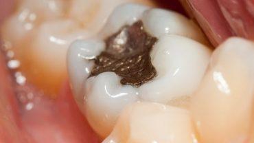 amalgama dentale pericoloso rimozione costo