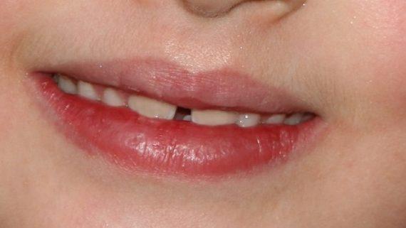 Diastema dentale: spazio tra i denti superiori e inferiori
