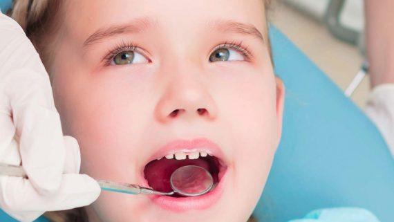 estrazione denti da latte