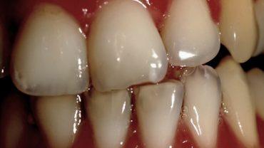 perdita smalto denti