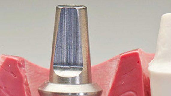 implantologia dentale non dolorosa immagine impianto