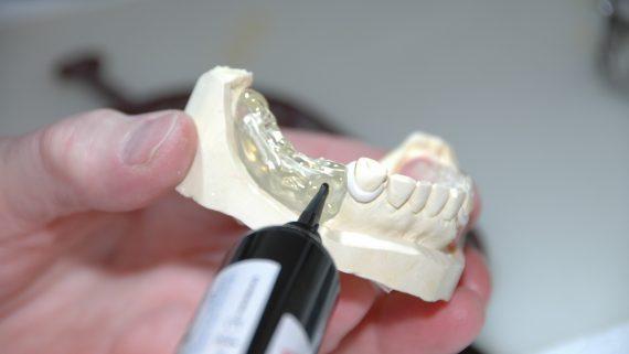 protesi dentarie ultima generazione