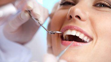 Quanto costa la pulizia dei denti?