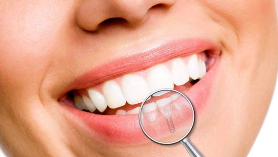 Quanto costa mettere un dente fisso
