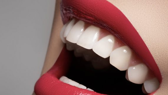 Ricostruzione smalto denti